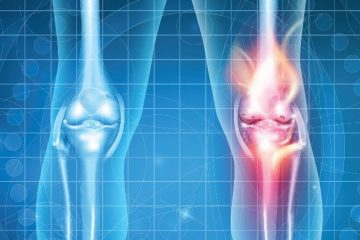 Advances in Management of Knee Pain & Replacement – 3/27